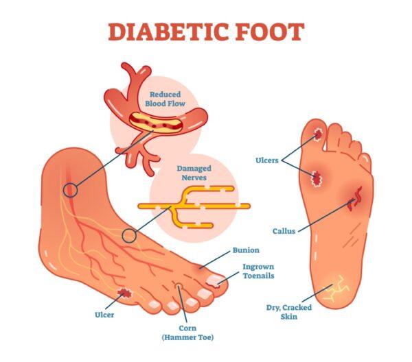 Diabetic foot - how Orthotics help