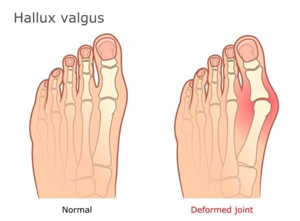 Hallux Valgus : Bunion - how Orthotics help