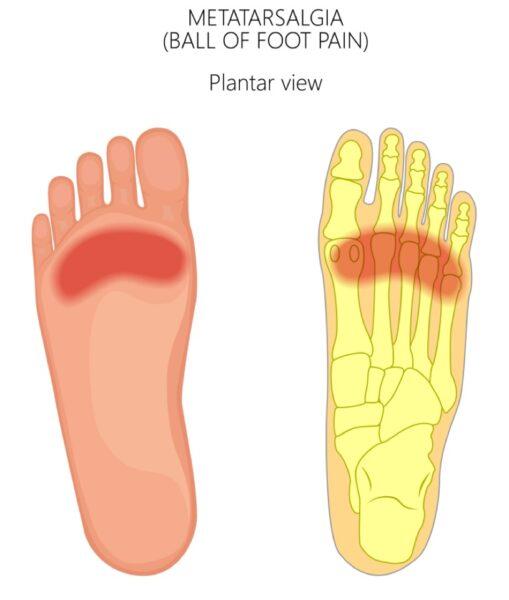 Metatarsalgia - how Orthotics help