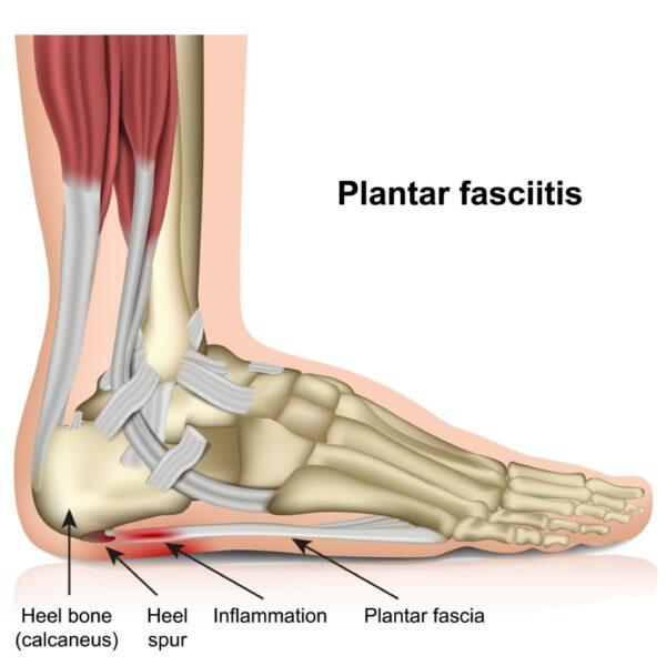 Plantar fasciitis - how Orthotics help