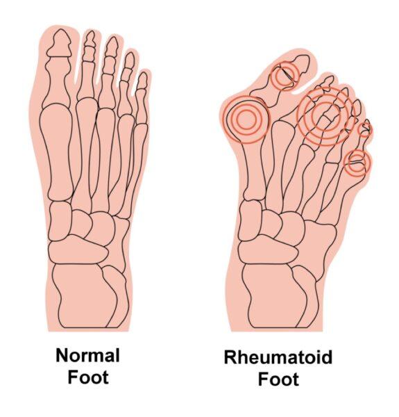 Rheumatoid Arthritis - how Orthotics help